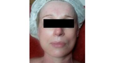 Nu Skin Hautbehandlung